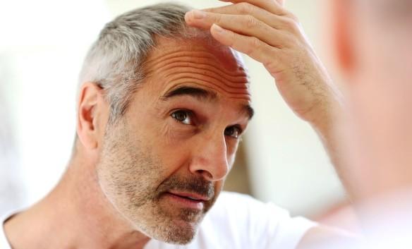 Időskori hajvesztés