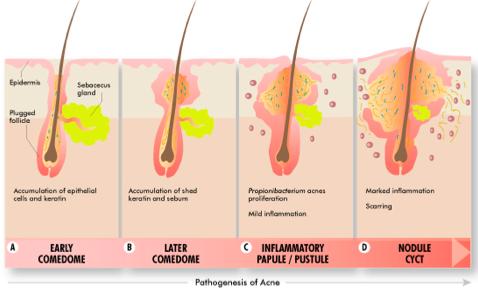 A  hajhagymagyilkos  baktérium