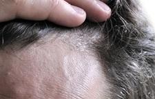 Seborrhoeic-dermatitis