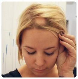 Foltos hajhullás esetek