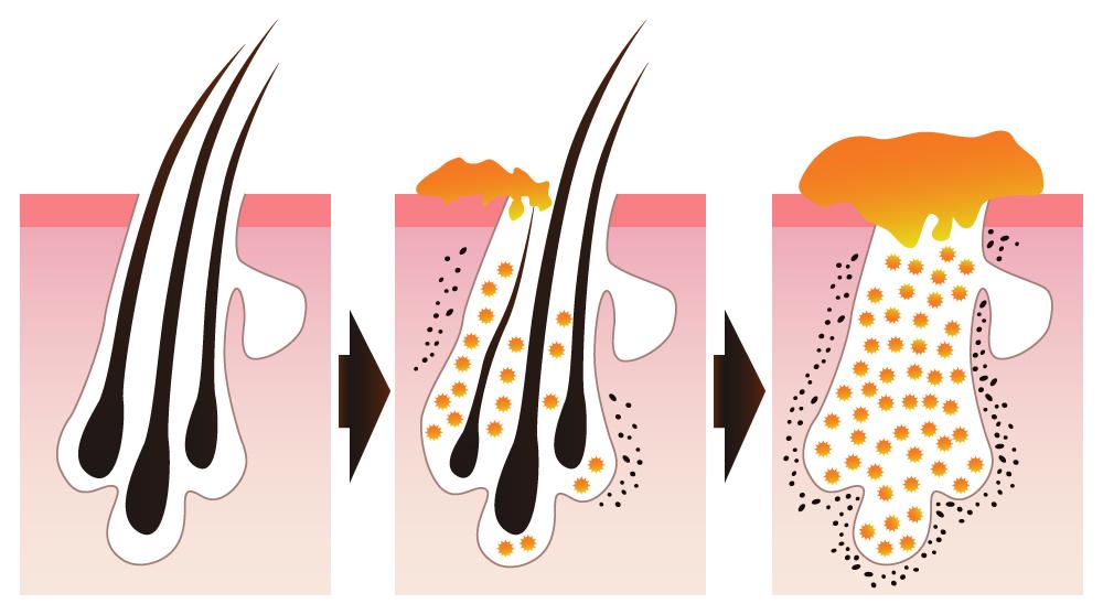 Seborrhoeas dermatitis
