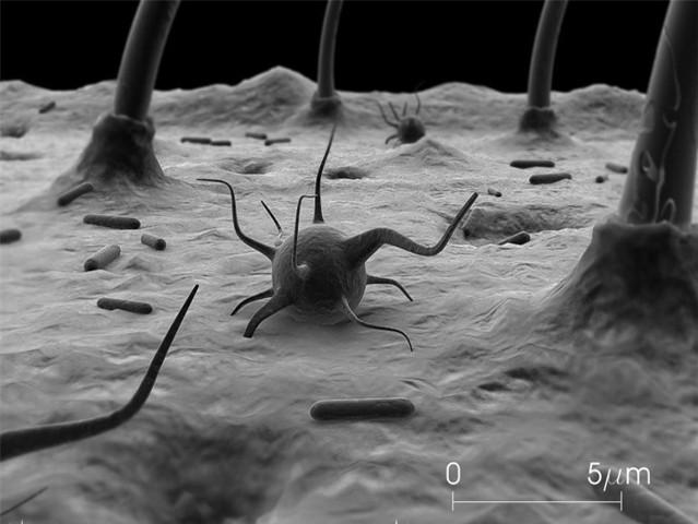 Hajhullás parazitától