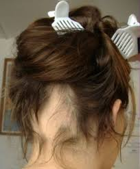 foltos hajhullas