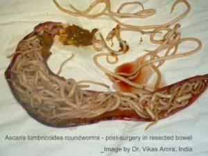 Ascaris parazita)